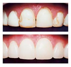 dental filling front teeth - photo #41