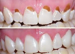 dental filling front teeth - photo #37