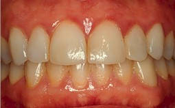 Trusted Affordable Dentist in New York ---Implant, Invisalign ...