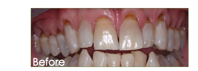 how to fix gums after dipping